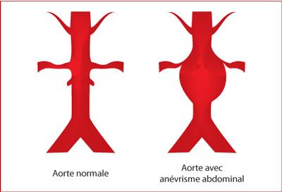 anevrisme aorte abdominal